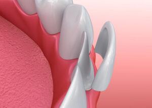 Veneers Behandlung Zahnarzt Berlin