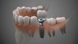 Zahnimplantate.Behandlung.Berlin.Mitte.Zahnarztpraxis.Mundwerk.Alexa