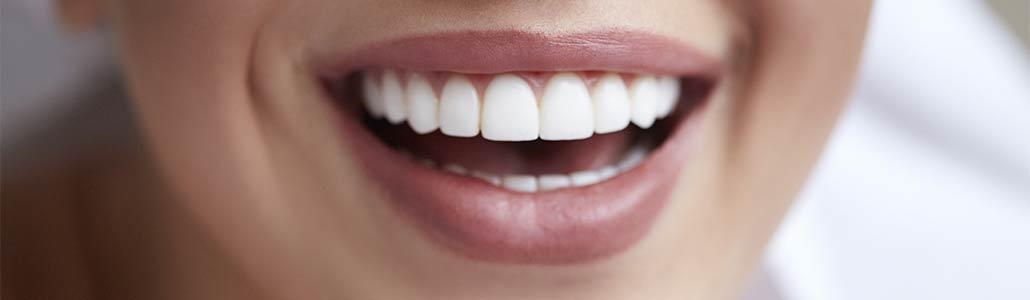 Schöne Zähne nach