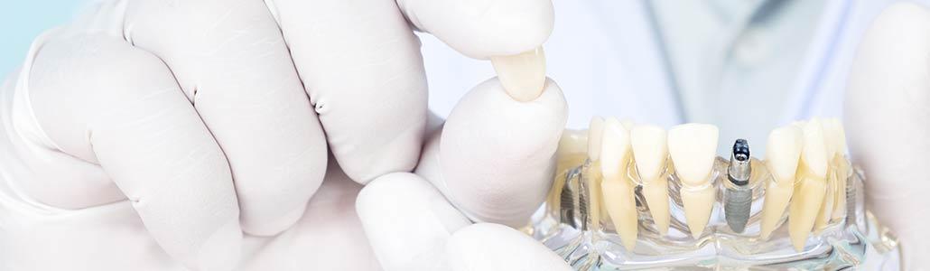 Zahnarzt zeigt Zahnimplantate am Modell